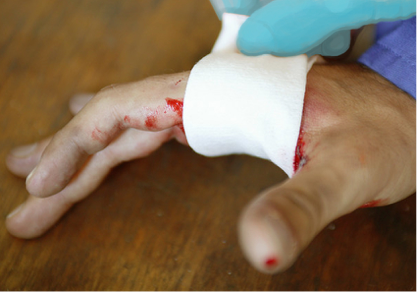 Bleeding Bleeding is a serious medical emergency. If a co-worker is bleeding heavily, you have to stop the flow of blood while you wait for EMS personnel to arrive.